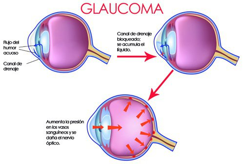 glaucoma-marihuana