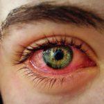 conociendo-el-cannabis-por-que-fumar-marihuana-nos-pone-los-ojos-rojos-5354_XL