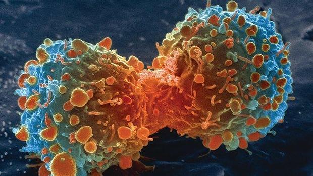 celula-tumoral-cancer-pulmon-cbd