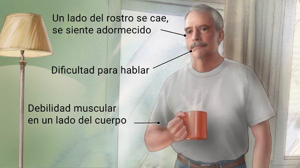 Síntomas de un accidente cerebrovascular