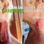 insta-tratamiento-cancer-cannabis-tumor-ulcerado