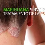 marihuana-psoriasis