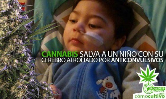 Cannabis salva a un niño con su cerebro atrofiado por Anticonvulsivos