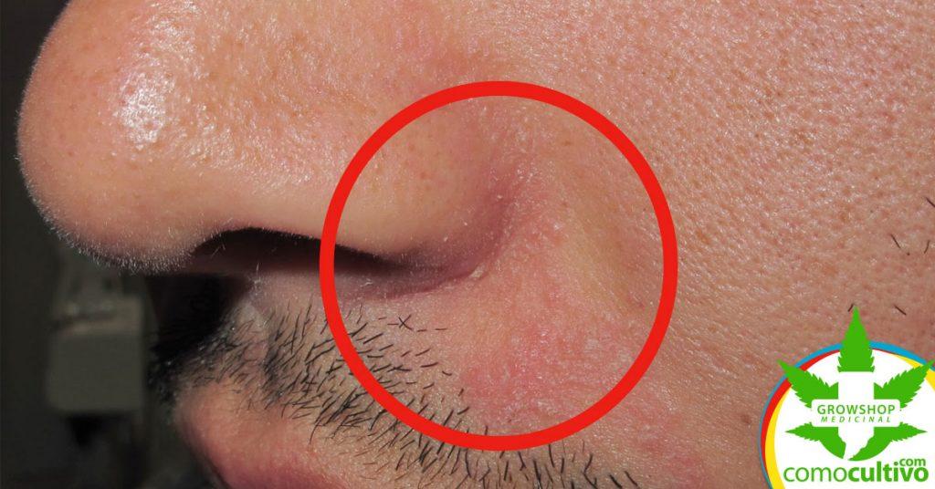 tratar la dermatitis