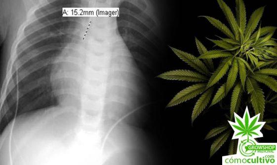 """""""La primera muerte por cannabis en sobredosis""""¿Es verdad?"""