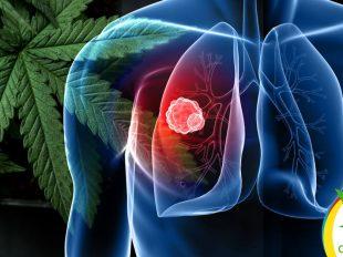 cannabis reduce cáncer de pulmón