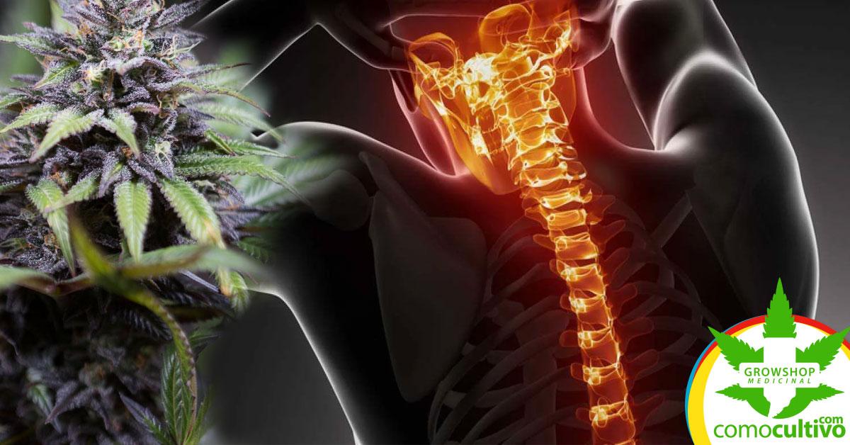 dolor de Lesiones Medurales con Cannabis