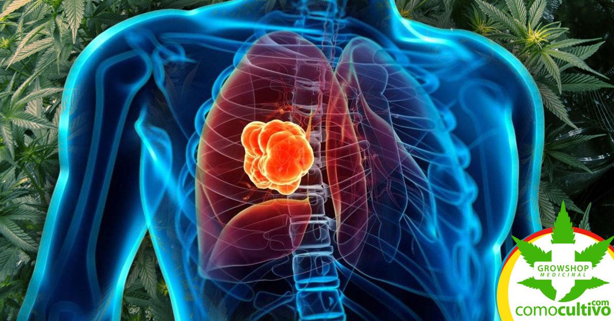 CBD inhiben la proliferación del cáncer